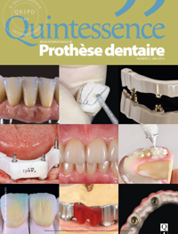 quintessence-prothese-dentaire-n2-2014